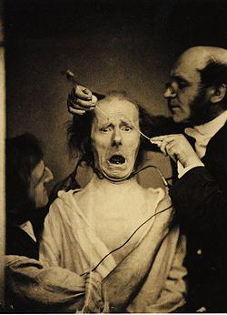 250px-Guillaume_Duchenne_de_Boulogne_performing_facial_electrostimulus_experiments[1]